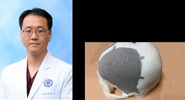 심규원(신경외과학교실)교수 연구팀, '의료영상 기반 3D 프린팅 모델링 표준안' 국제표준 신규제안 승인